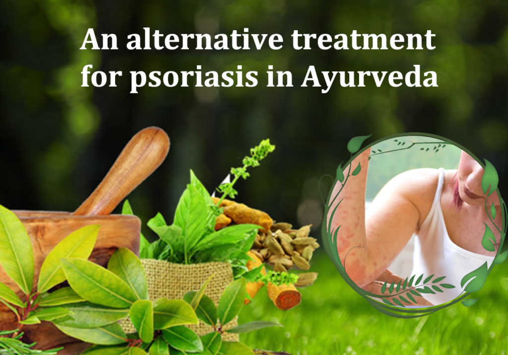 psoriasis treatment in ayurveda