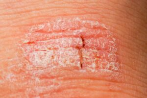 dr health psoriasis