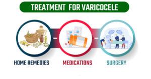 Treatment for varicocele